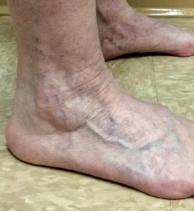 Ankle veins after treatment