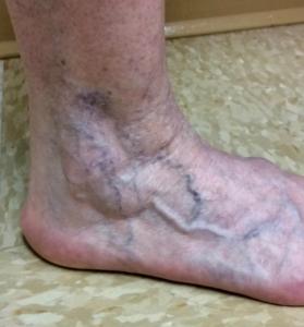 Ankle veins before treatmnet