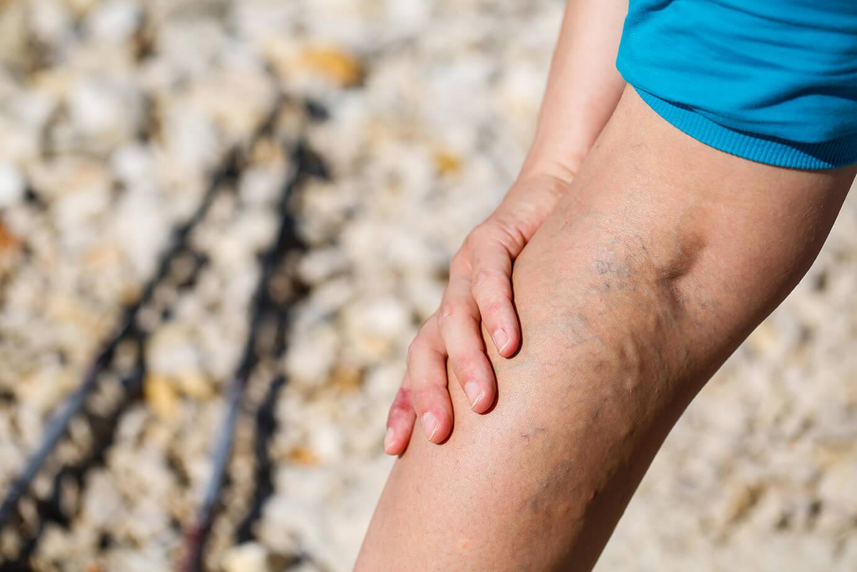 varicose vein leg pain intensifies in the summer