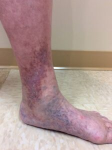 venous stasis on ankle