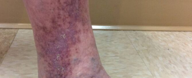 Image of ankle with venous stasis for blog about what is venous stasis